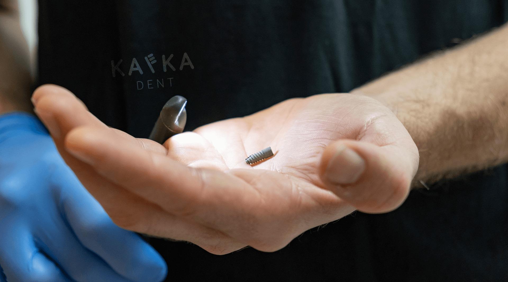 Zubné implantáty a ich cena